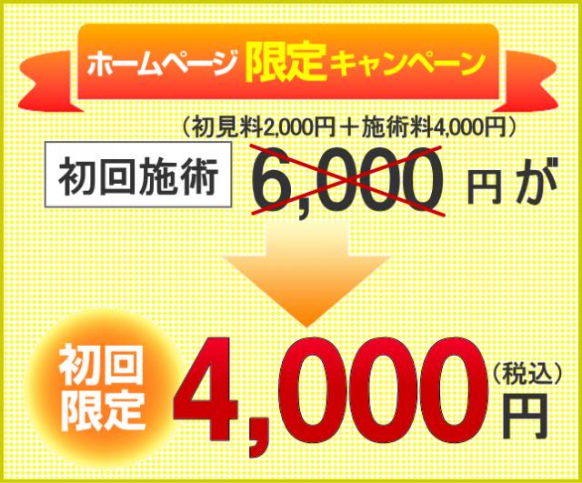 ホームページ限定キャンペーン 初回施術6000円が、初回限定4000円